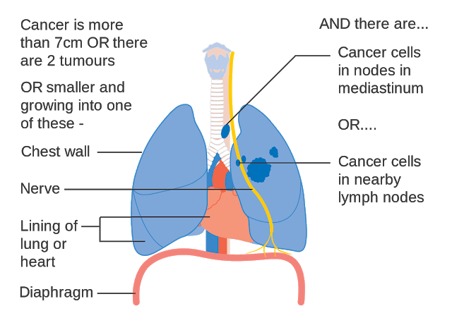 Lung cancer- symptoms, causes, Types