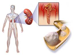 Kidney cancer: Symptoms, Causes, Diagnosis and Treatment