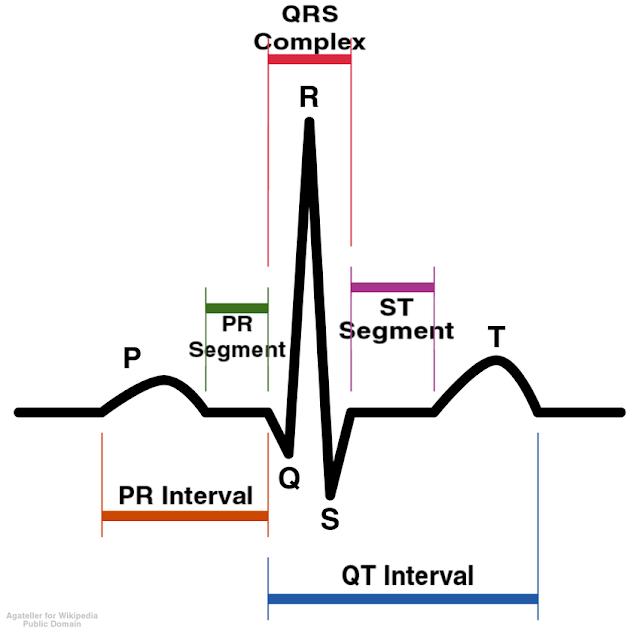 ECG: P wave, QRS wave ,T wave